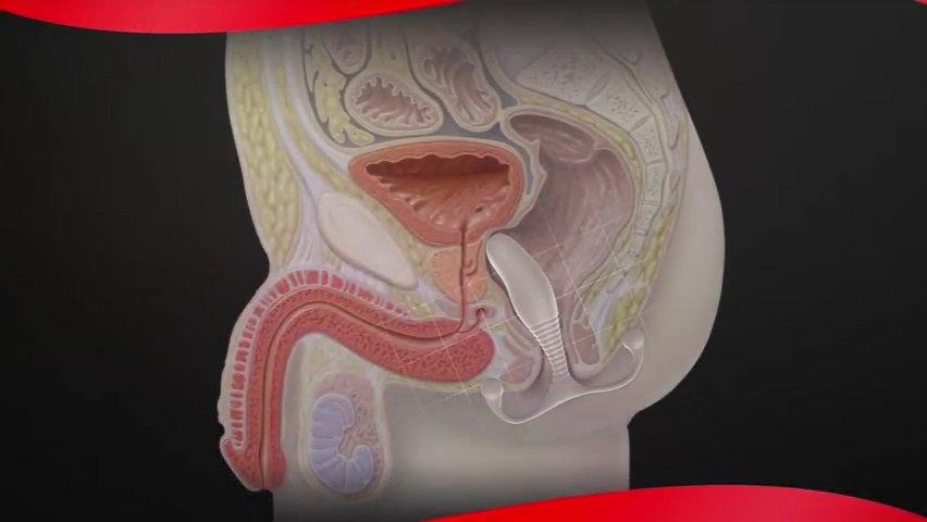 前立腺と精嚢刺激のオーガズムの違い